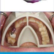 miratray-implant-2